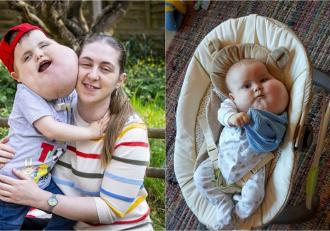 """Băieţel de 4 ani cu chist de mărimea unui grapefruit pe față sfidează doctorii şi face primii paşi, în Londra: """"Un bărbat m-a întrebat dacă fiul meu este real"""""""